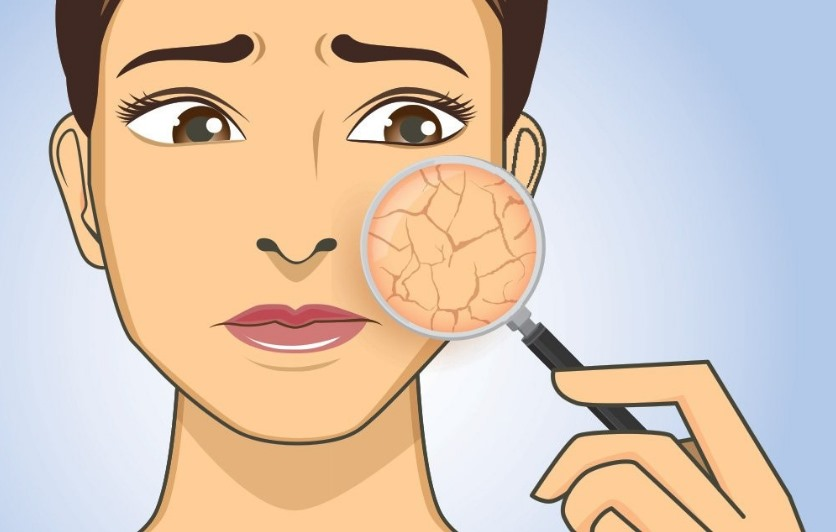 Сухость кожи лица