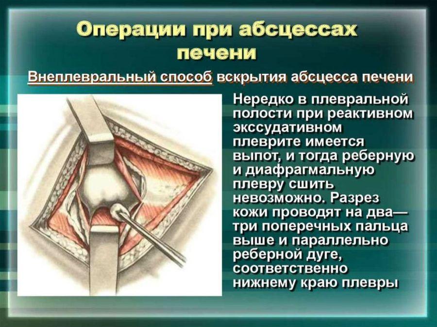 Операция при абсцессе печени