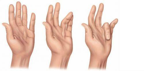 Сгибательная контрактура кистей рук