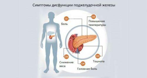 Признаки дисфункции поджелудочной