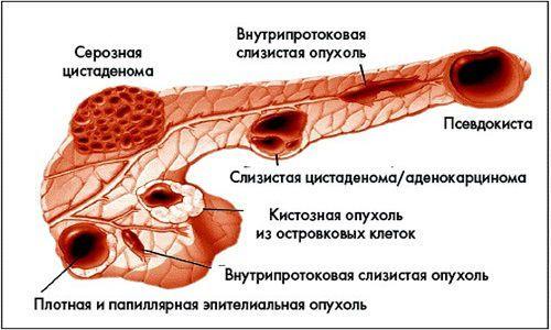 Разновидности кист поджелудочной