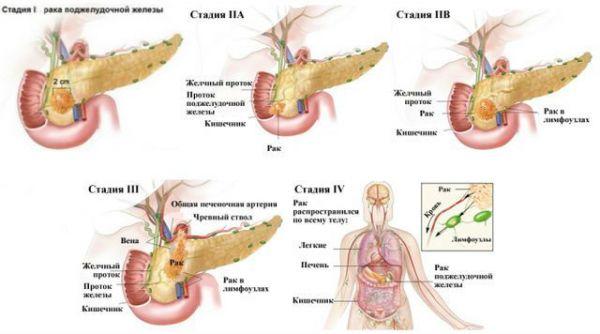 Классификация рака по стадиям развития