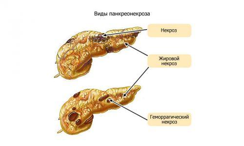 Панкреонекроз поджелудочной железы