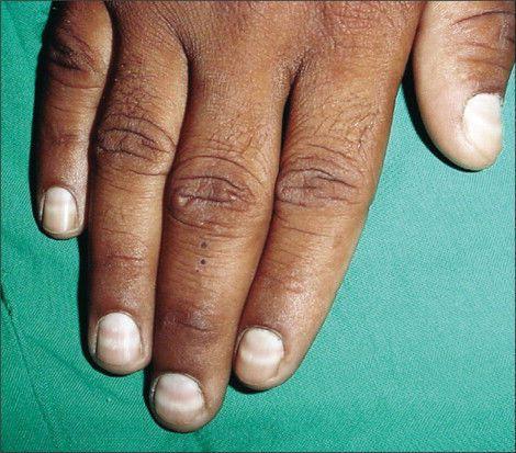 Изменение ногтей при циррозе печени