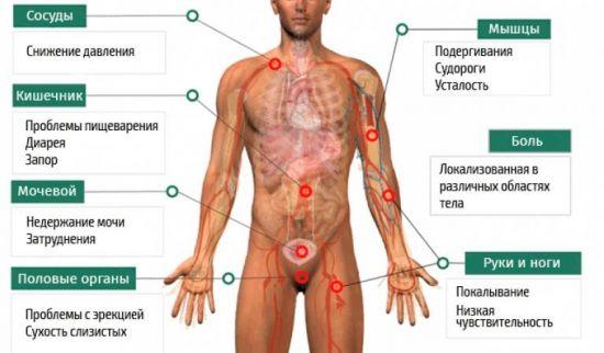 Симптомы диабетической нейропатии