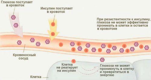 Механизм развития сахарного диабета 2 типа