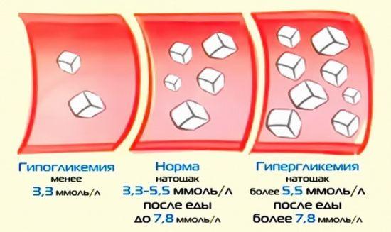 Разновидности гликемии