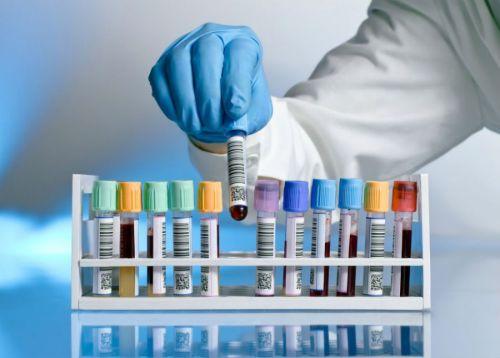 Какие анализы крови сдать для поджелудочной железы thumbnail