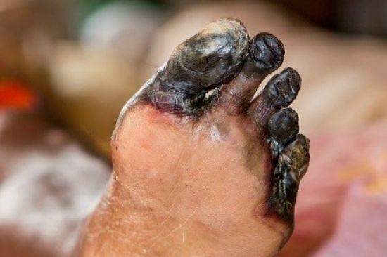 Гангрена пальцев стопы