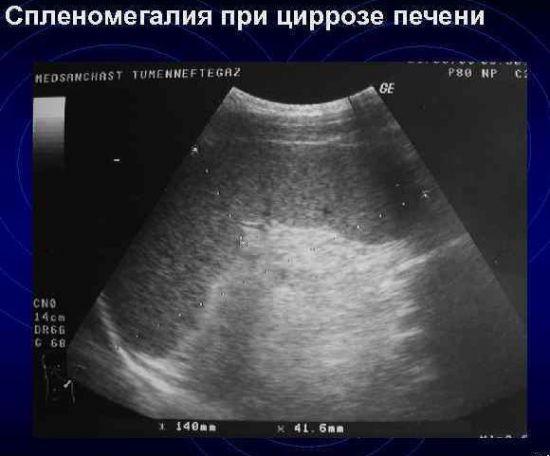 Спленомегалия при циррозе на УЗИ