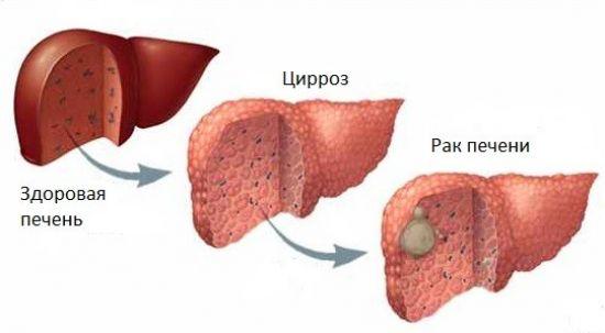 Рак печени после цирроза