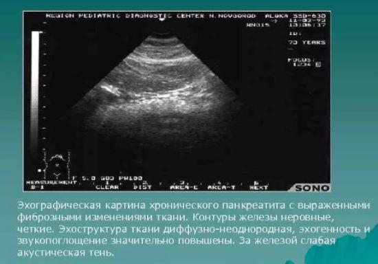 Хронический панкреатит на УЗИ