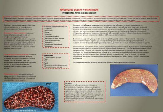 Туберкулез печени и селезенки