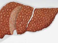 Аутоиммунный цирроз печени