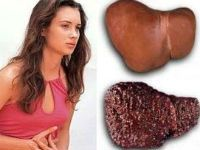 Цирроз у женщин