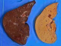 Амилоидоз печени